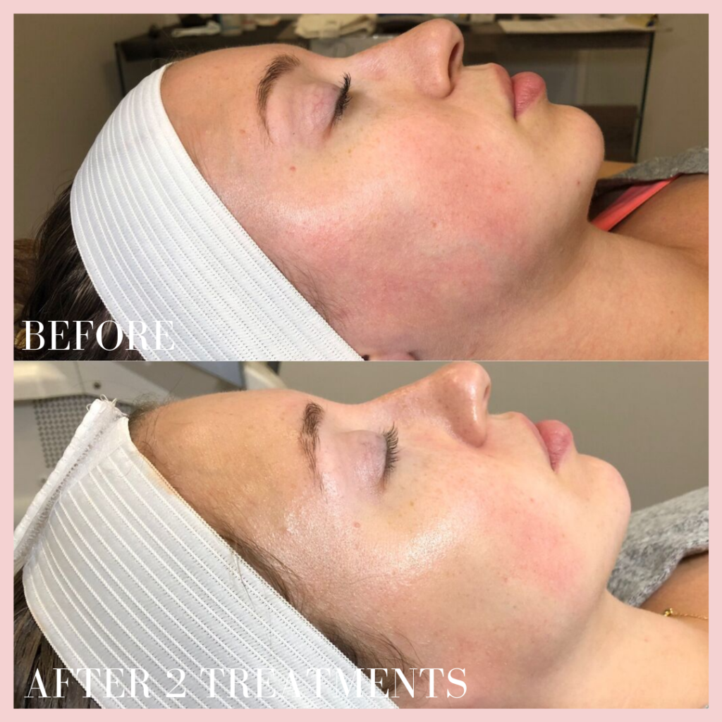 BB Glow treatment before & after photo