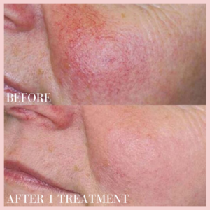 photo rejuvenation treatment targeting rosacea before & after results