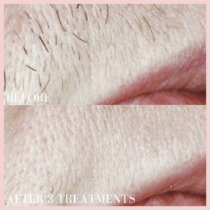 Laser hair removal treatment before & after results