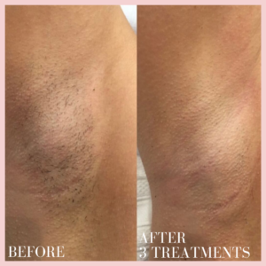 under arm Laser hair removal treatment before & after results