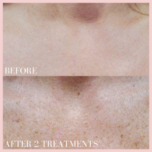 photo rejuvenation pigmented lesion treatment targeting brown and red discolouration before & after results