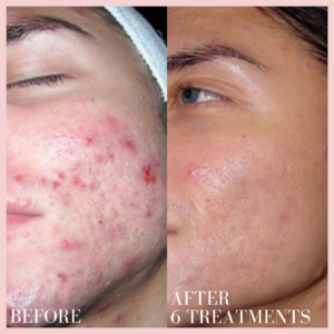 dermal infusion face acne treatment
