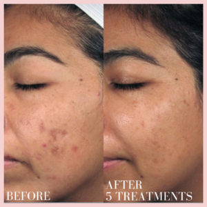 dermal infusion face acne treatment before & after results