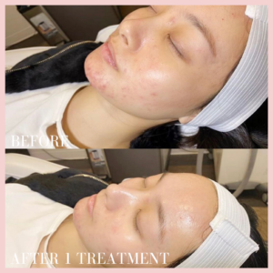 fire & ice facial treatment before & after results