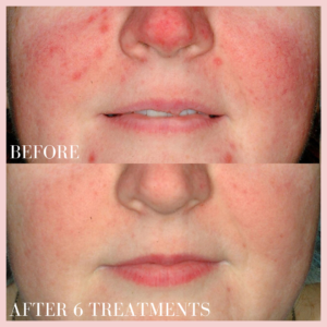 brown and red discoloration face