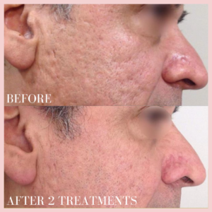Microneedling Collagen Induction Therapy skin resurfacing, fine lines & wrinkles, scars cheeks before & after results