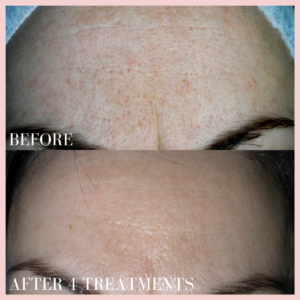 Microneedling Collagen Induction Therapy skin resurfacing, fine lines & wrinkles, scars forehead before & after results