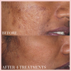 Microneedling Collagen Induction Therapy skin resurfacing, fine lines & wrinkles, scars before & after results