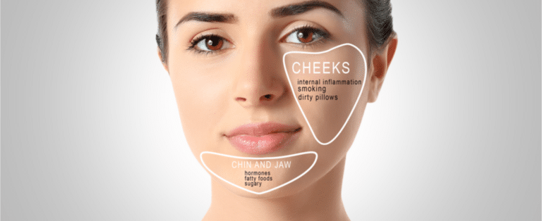 Acne face map detail