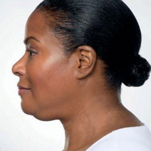Belkyra double chin treatment underchin fat