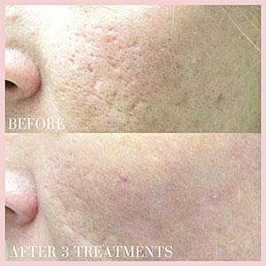 acne scar repair fraxel laser