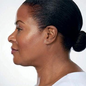 double chin removal non surgical