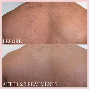 back hair laser removal before and after