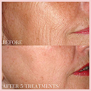 laser fraxel skin resurfacing