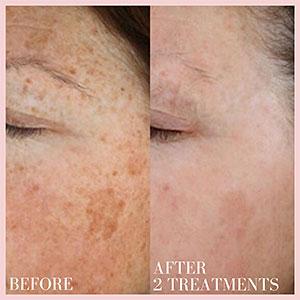 laser treatment hyperpigmentation