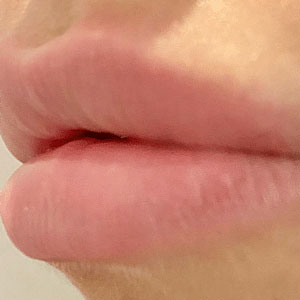 lip fillers smooth lips youth