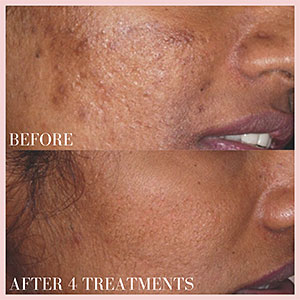 micro needles help acne