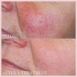 photofacial ipl before and after