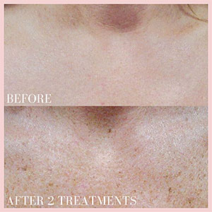 remove age spots moles before and after