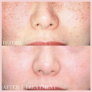 remove unwanted spots on face