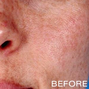 retinol peel scar removal