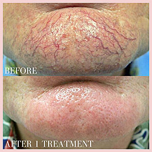 ugly veins on face laser treatment
