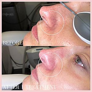 varicose veins nose repair